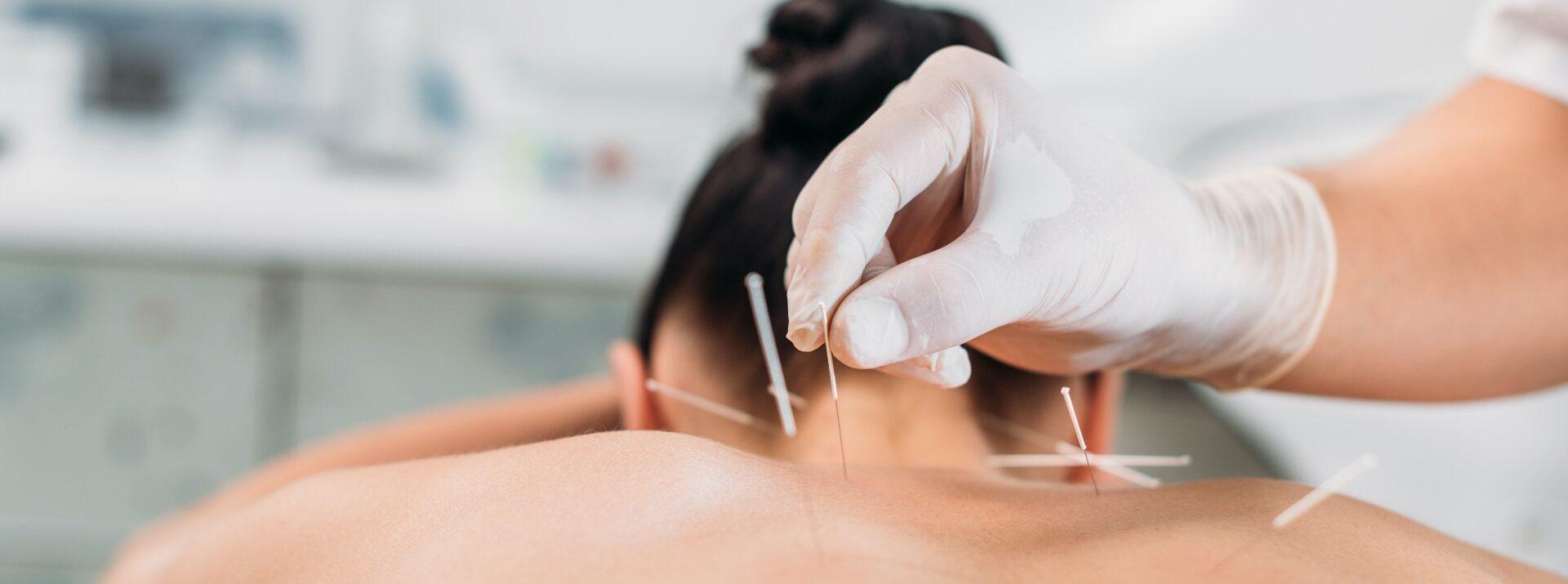 akupunktur ryggen